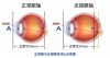 深圳希玛眼科医院:高度近视常做的ICL晶体植入手术是什么?